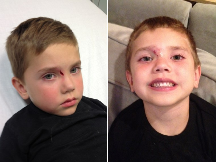 Natalie Morales' 4-year-old son Luke, before and after getting stitches for the first time in September 2012.