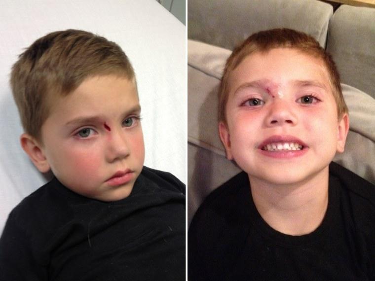 child s stitches parents trauma natalie morales survives first