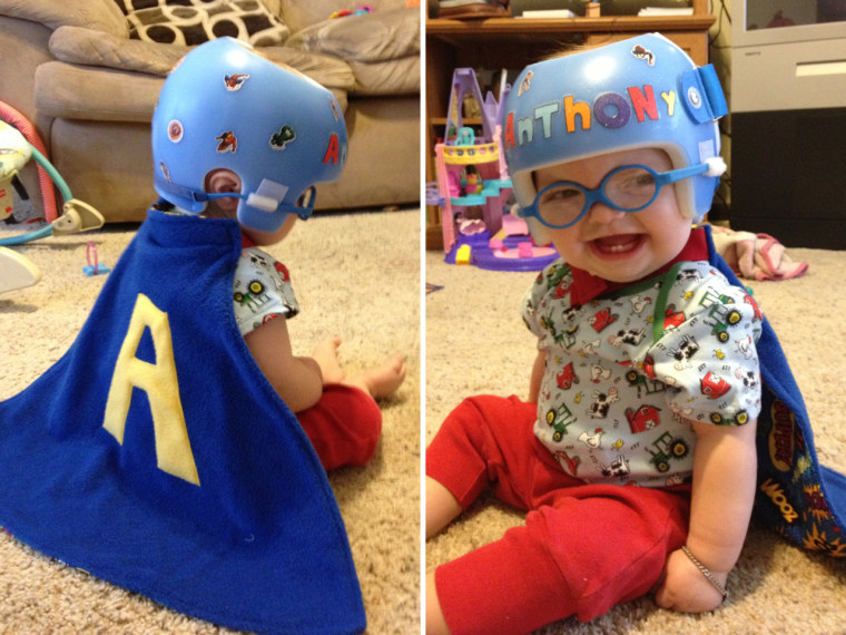"""Anthony, 1, lives in Amrington, Ill., and according to his mom, has fought developmental delays, congenital heart defects and seizures. """"He has another surgery coming up on Thursday, and his cape will be close by, helping him fight through!"""" his mom, Jacqueline Durham, said."""