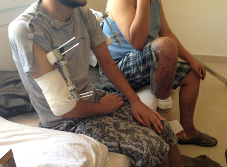 This 20 year old wounded Syrian opposition fighter who was hit by shrapnel in both arms when his rocket launching position was hit by an artillery shell. He says he wants to return to Syria to fight Assad's troops when he recovers from his wounds.