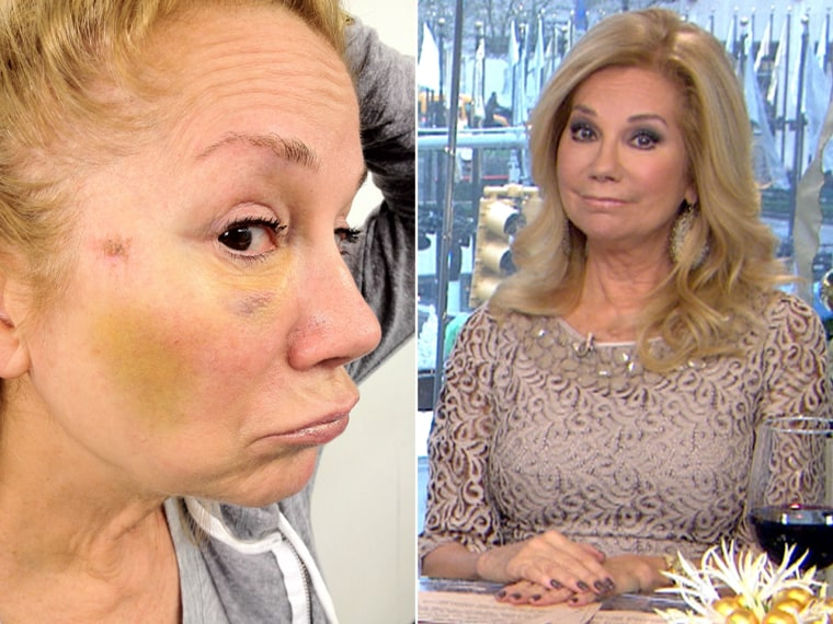 Kathie Lee's bruise, left, after running to meet a delivery man.