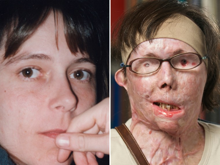 Carmen Blandin Tarleton before the attack and in July 2011, prior to face transplant surgery.
