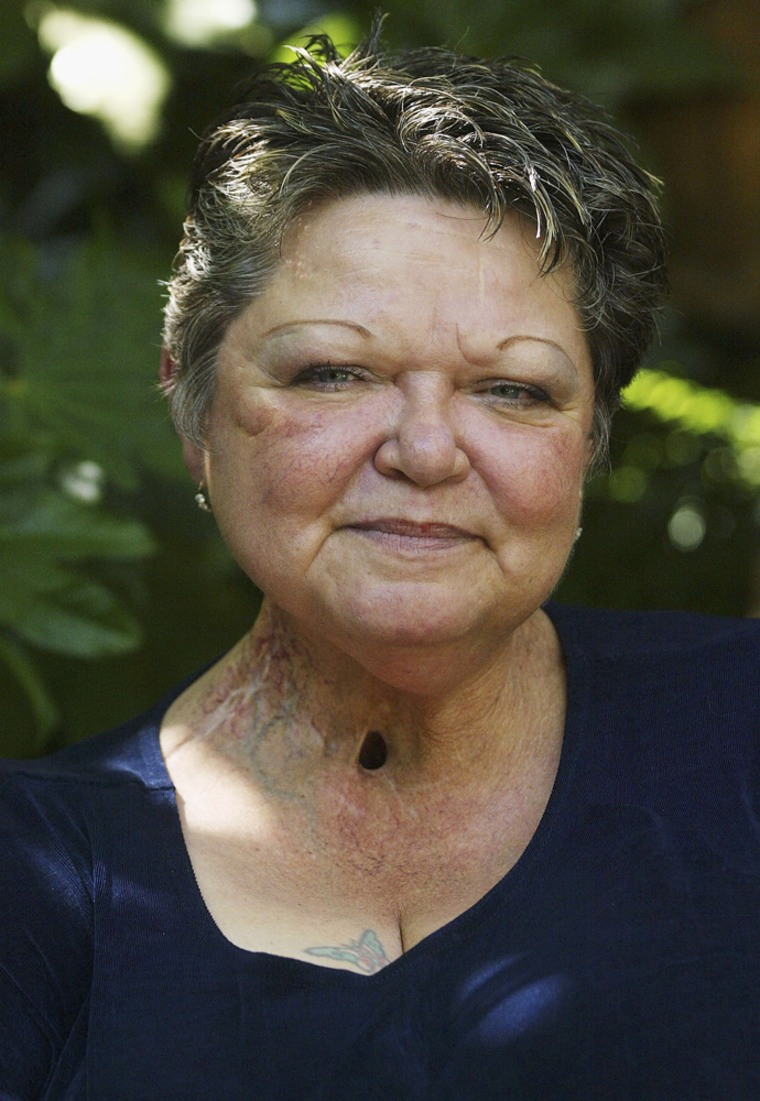 Debi Austin became an influential anti-tobacco advocate in a series of TV ads that showed the dangers of smoking.