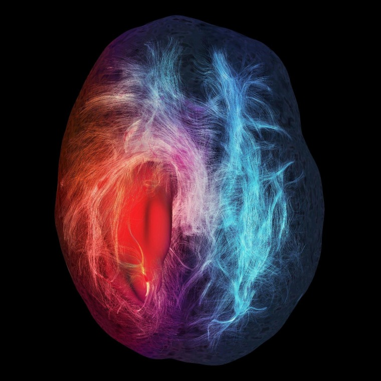 ""\""""Cerebral Infiltration"""" won honorable mention and People's Choice in the illustration category. The image is the result of fiber tractography from diffusion-weighted magnetic resonance imaging. It illustrates the structural connections contained in the white matter of the brain. The red, smooth surface represents a glioblastoma tumor. Blue fibers indicate that the fibers are located a safe distance away from the tumor, while the red fibers are in a close perimeter to the tumor and can cause severe post-operation deficits if they are cut. The illustration is by Maxime Chamberland, David Fortin and Maxime Descoteaux.""760|760|?|en|2|5a4f19b458998b584b823cd018e6be89|False|UNSURE|0.2952982783317566