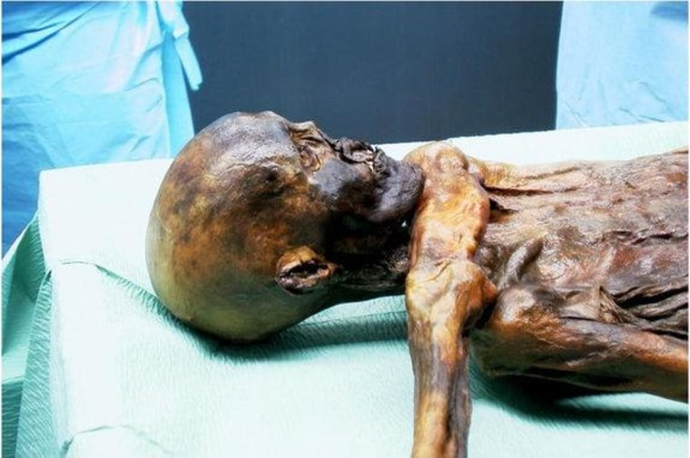 Otzi the Iceman mummy died roughly 5,300 years ago, and since hikers stumbled upon his astonishingly well-preserved frozen body in the Alps in 1991, he as become one of the most-studied ancient human specimens ever.