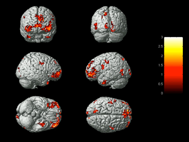 Functional magnetic resonance imaging (fMRI) scans show the activation patterns when a brain experiences emotion