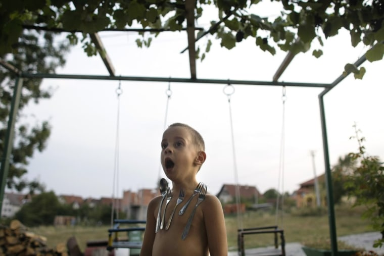 David Petrovic, 4, stands in his garden as silverware sticks on his chest in Gornji Milanovac, some 100 kilometers (60 miles) south of Belgrade, Serbia.