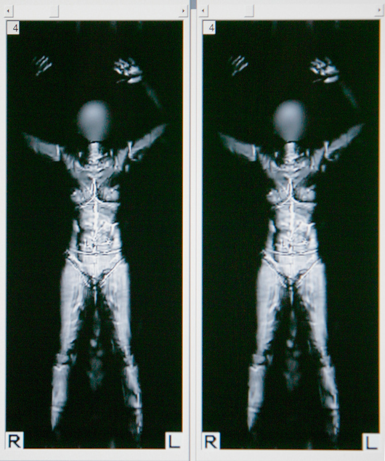 This photo shows a computer monitor viewed by a Transportation Security Administration officer, revealing details of the body of a fully-clothed employee of L3 Communications Security and Detection Systems as she is scanned inside a ProVision whole-body imaging machine at Los Angeles International Airport.
