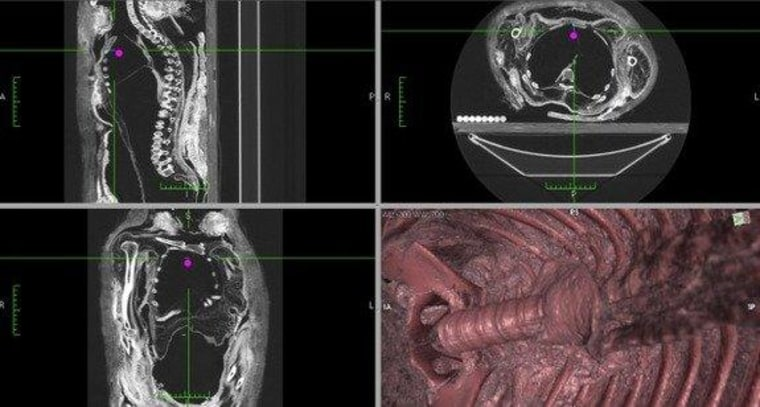 CT slices and 3-D reconstruction showing the empty body cavity of the Royal Ontario Museum's ROM910.5.3 mummy.
