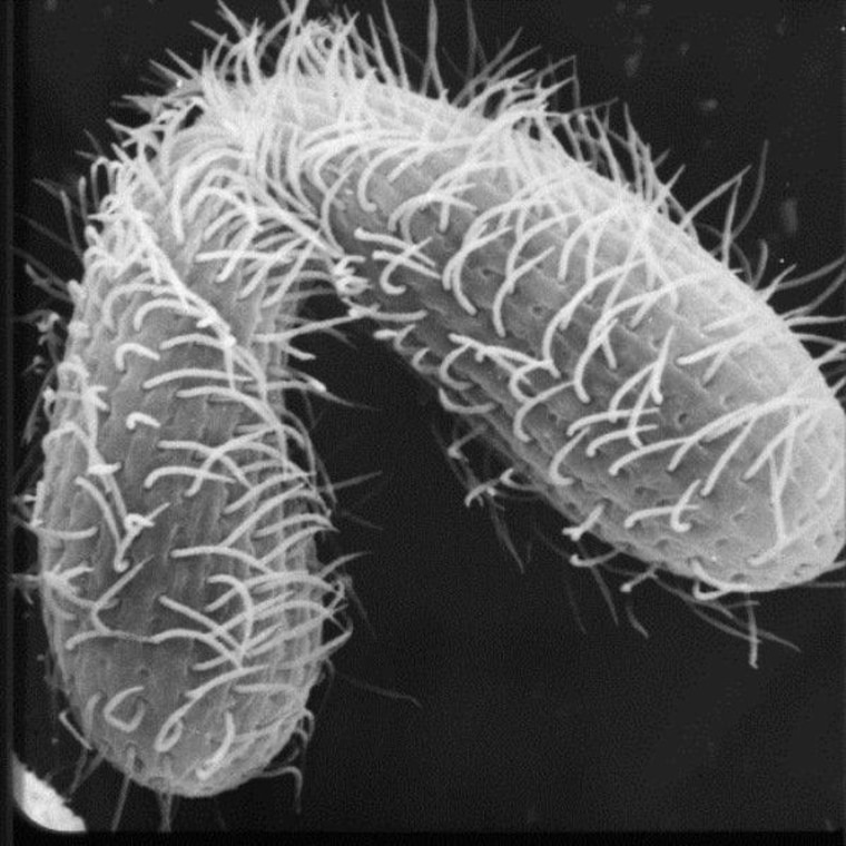 An image produced by a scanning electron microscope shows two Tetrahymena cells caught in the act of mating.