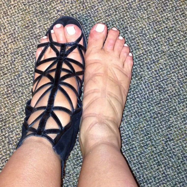 31fc065a6f9 This is swell  Kim Kardashian posts pic of puffy pregnancy feet