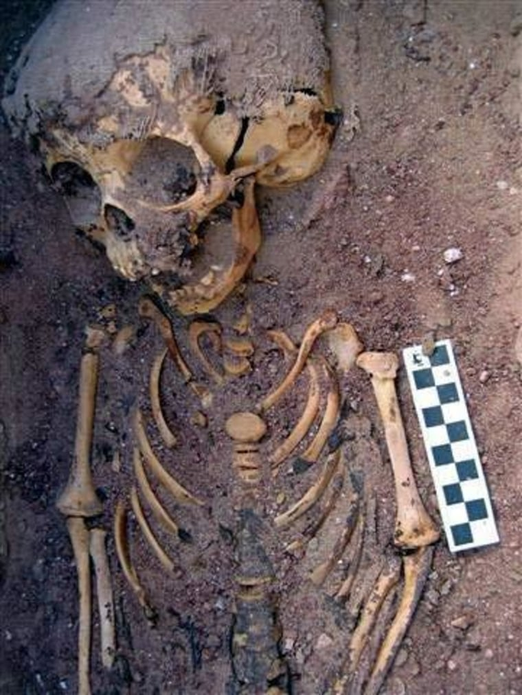 A close-up of the upper body of burial 519, the 2,000-year-old remains of an abused toddler found in Egypt.
