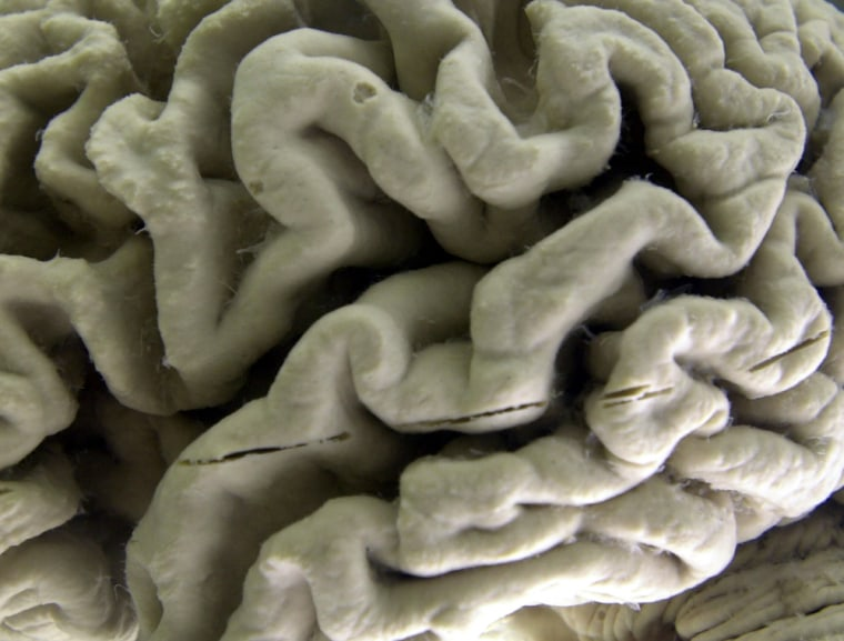 **ADVANCE FOR WEEKEND EDITIONS, NOV. 22-23 ** A section of a human brain with  Alzheimer's disease is on display at the Museum of Neuroanatomy at the ...