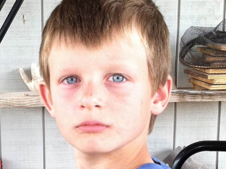 Jack Robbins, 8, of Frisco Texas