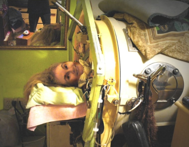 60 years in an iron lung: US polio survivor worries about new global threat