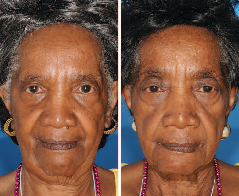 The twin on the left is a nonsmoker and the twin on the right smoked for 29 years. Note the differences in periorbital aging.