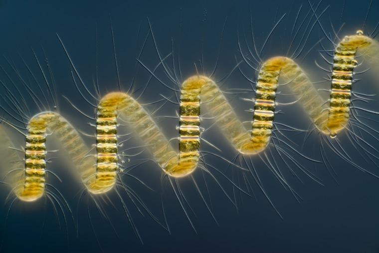 Mr. Wim van Egmond Micropolitan Museum Berkel en Rodenrijs, Zuid Holland, The Netherlands Chaetoceros debilis (marine diatom), a colonial plankton org...
