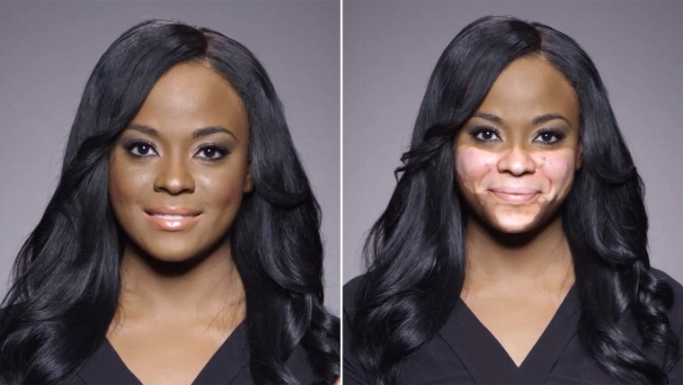 In a new ad for Dermablend, volleyball coach Cheri Lindsay reveals her skin-pigment disorder Vitiligo.