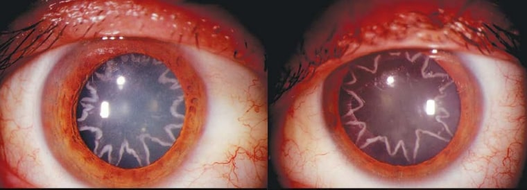 After an electrical burn, a man developed star-shaped cataracts in his eyes.