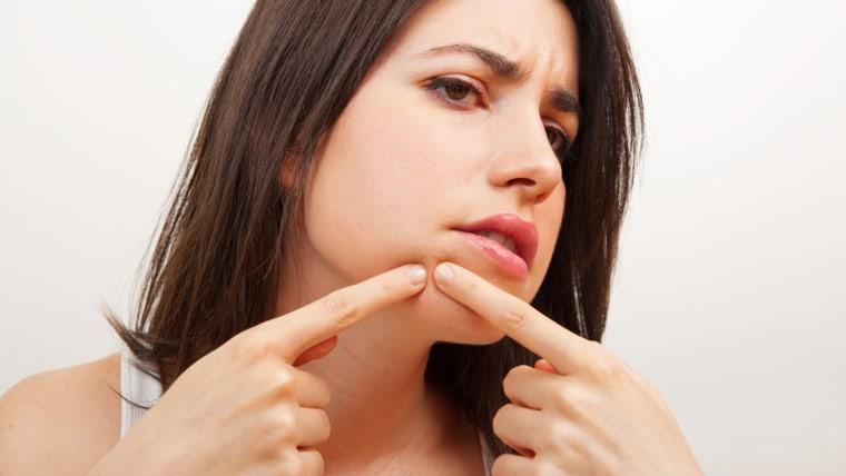 acne, adult acne, pimple, zit