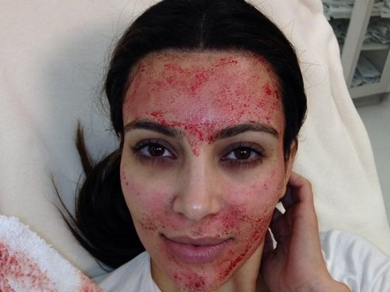 Kim Kardashian Vampire Facial Facelift