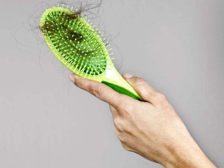 female pattern baldness hair transplants