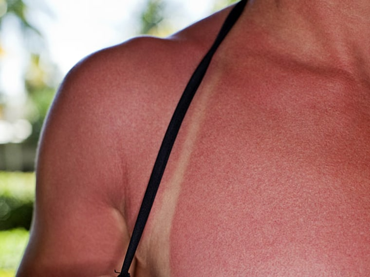 From Sunburn to Razor Burn, How to Prevent Summer Skin Care Disasters