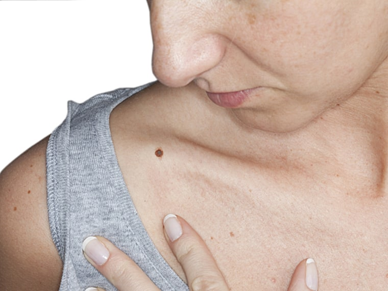 Sun and Cancer: Signs of Melanoma
