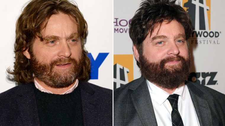 Zach Galifianakis, before and after