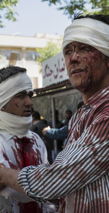 Image: Two injured men leave a hospital after receiving first aid treatment, a few blocks away from where a truck bomb exploded in central Kabul, Afghanistan.