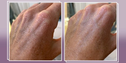 Writer Katie Jackson showing her hands before and after using Bio-Oil Dry Skin Gel