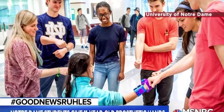 #GoodNewsRUHLES: Notre Dame students build girl 3D printed hands