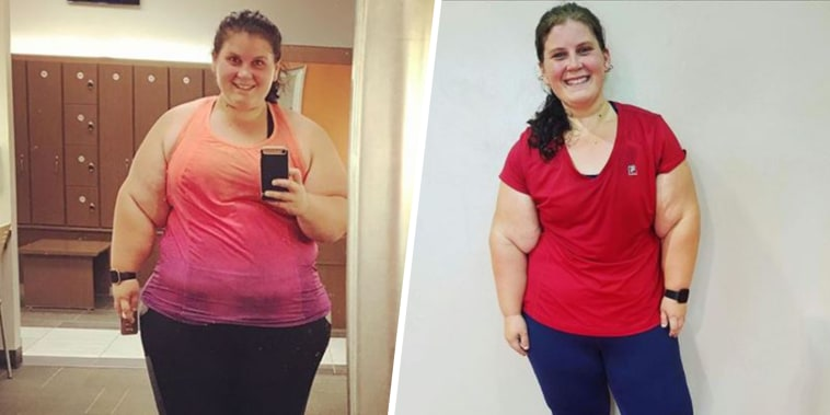 Woman who lost 140 pounds