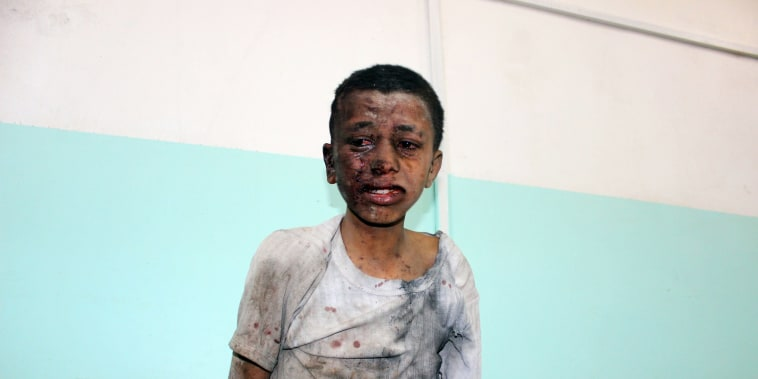 Image: A Yemeni child awaits treatment at a hospital after he was wounded in a reported air strike