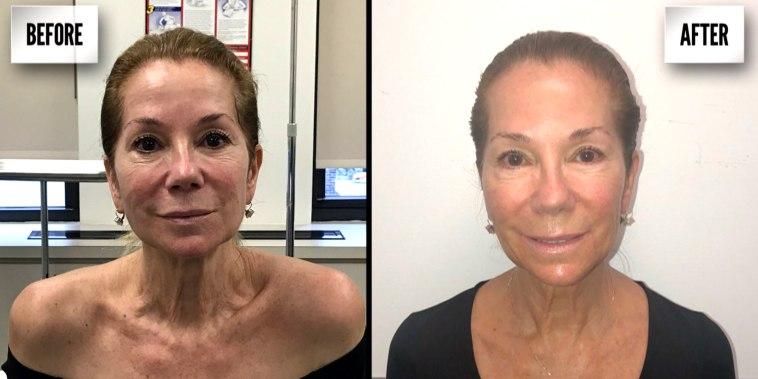 KLG Tries Laser Skin Treatment