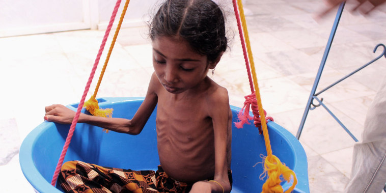 A girl suffering from severe malnutrition is weighed at a treatment center in a hospital in Yemen