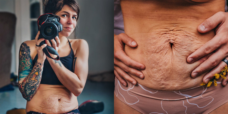 Hayley Garnett has been honest about her struggle with diastasis recti, a condition where abdominal muscles separate during pregnancy.