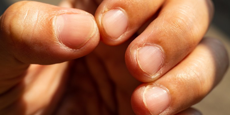 Woman nibbling  her nails, Close up & Macro shot, Selective focus, Asian body skin part, Healthcare concept