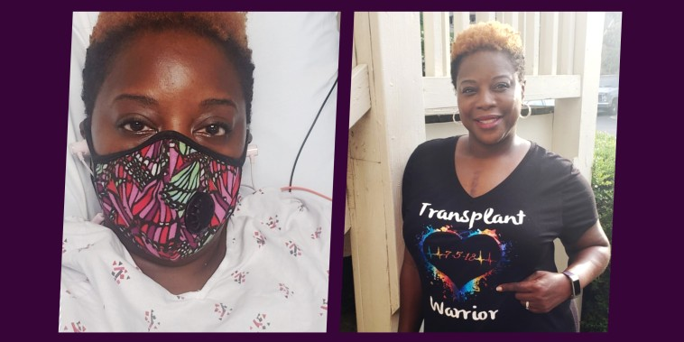 Split image of woman before and after transplant