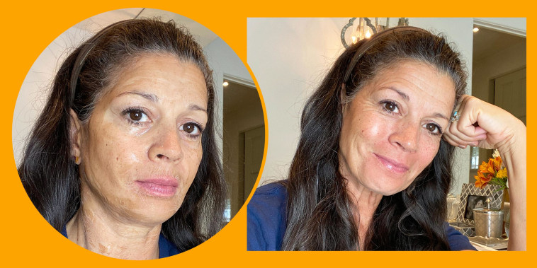 Illustration of writer Dina Eastwood during and after using the Hanacure facial mask