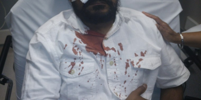 "Sikh American Inderjit Singh Mukker, 53, who was brutally attacked in his car in Darien, Illinois, after being called ""Bin Laden"" and ""terrorist."""