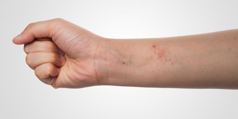 eczema skin on hand
