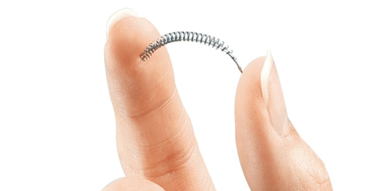 Should Consider Essure for Sterilization