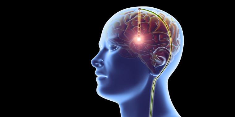 Deep brain stimulation, artwork