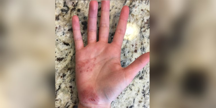 Hand during a recent eczema flare.