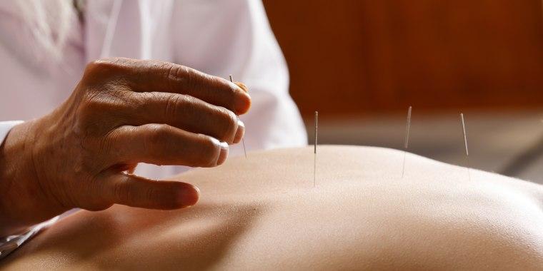 Image: Acupuncturist working on patient