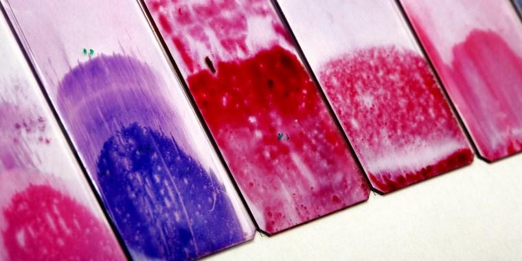 Cervical smear slides