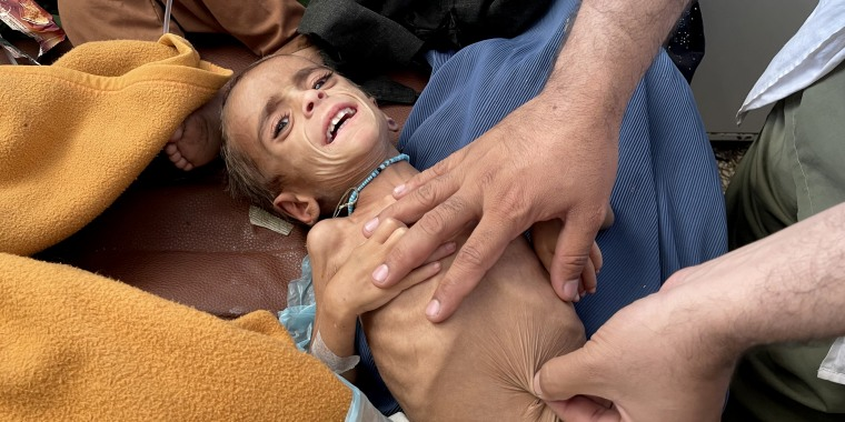 Afghan children face death from starvation