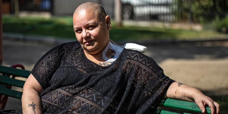 Cecilia Heyder, a Chilean activist for the right to a dignified death and who suffers from metastatic cancer, lupus and a blood disorder, sits during an interview with The Associated Press at a park in Santiago, Chile on April 15, 2021.