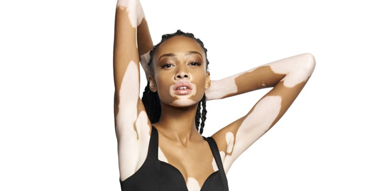 Model with vitiligo: Only you can make yourself feel beautiful
